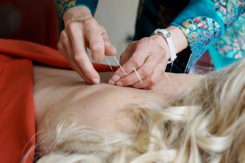 Akupunktur Rücken