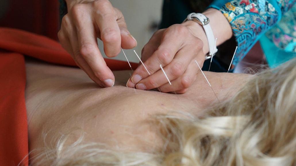 Chinesische Medizin Akupunktur